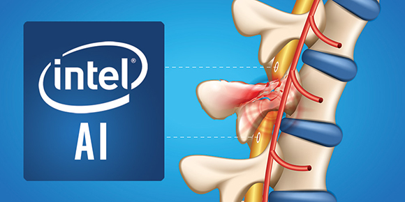 Intel chip spinal interface
